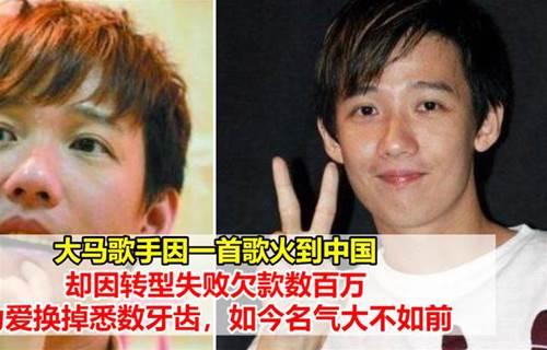大马歌手因一首歌火到中国,却因转型失败欠款数百万,他为爱换掉悉数牙齿,如今名气大不如前